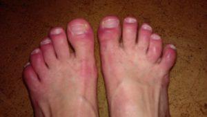 Воспаленные пальцы на ногах