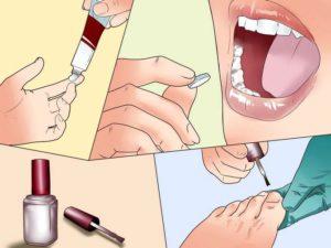 Различные формы лекарственного препарата