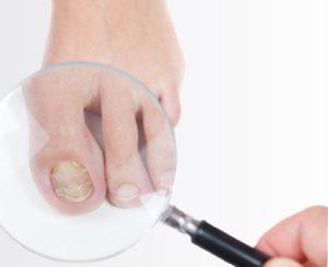 Осмотр ногтей под увеличительным стеклом