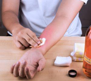 Проверка на аллергию