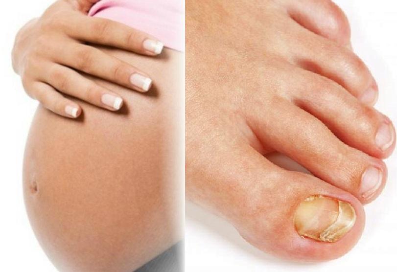 Грибок стопы при беременности влияние на плод
