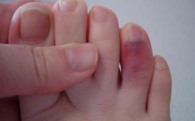 Посинел большой палец на ноге: причины и признаки заболеваний