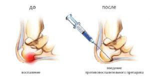 До и после введения противовоспалительного препарата