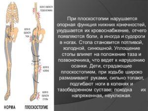 Нарушения в организме при плоскостопии