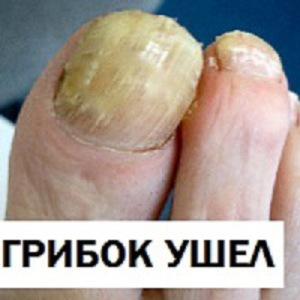 Отошел ноготь на большом пальце ноги