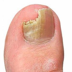 Желтые ногти на ногах: причина и лечение