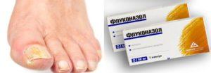 Грибок ногтя и Флуконазол
