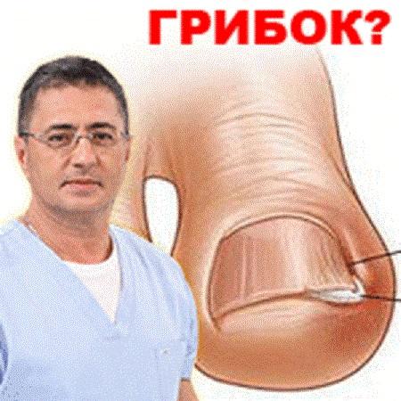 Александр Мясников и вопрос онихомикоза