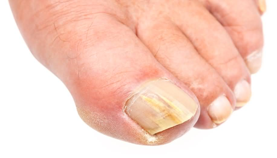 Лечение дрожжевого грибка на ногтях ног