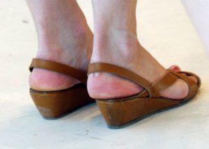 Неудобная обувь натирает пятки