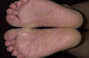 Сухая, шелушащаяся кожа