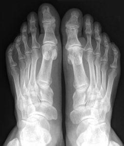 Рентгенография костей и суставов