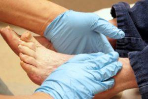 Осмотр стопы у дерматолога