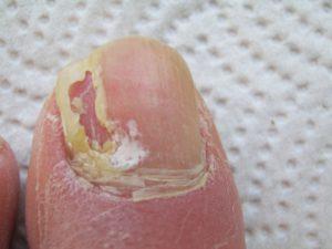 Деформация ногтевой пластины