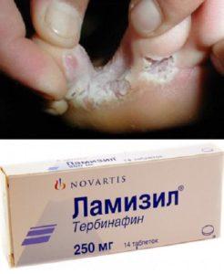 Грибок между пальцами и таблетки Ламизил
