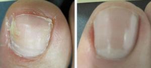 Ноготь до и после лечения грибка