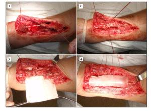 Операция при разорванном сухожилии