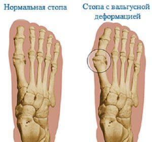 Кости нормальной стопы и с вальгусной деформацией