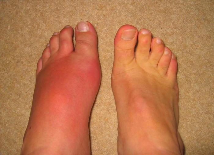 Как и чем лечить подагру на большом пальце ноги