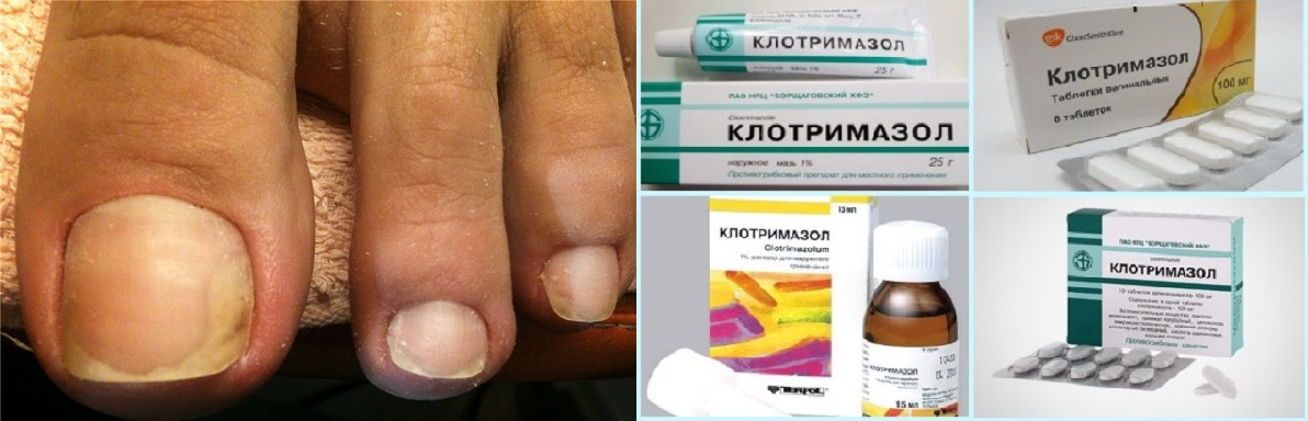 Грибок ногтя и различные формы Клотримазола