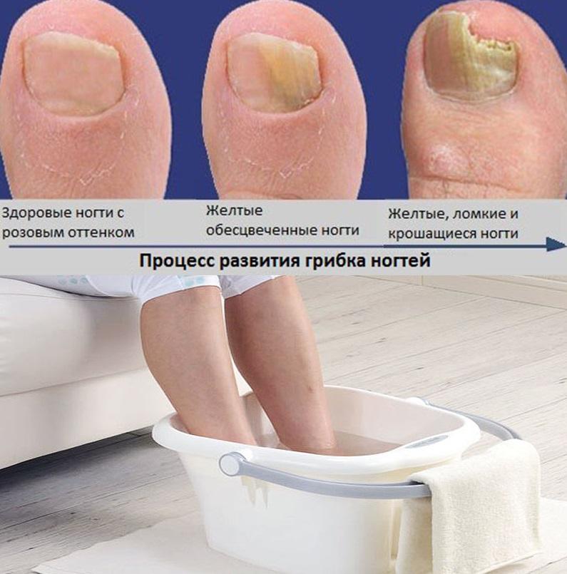 Ванны для ног против грибка ногтей
