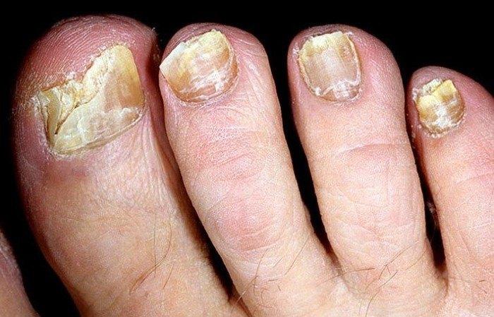Где лучше лечить грибок кожи