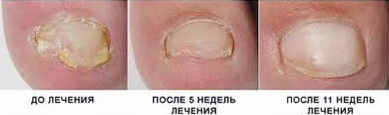 Рекламируемое средство от грибка ногтей