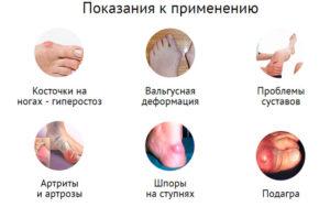 Показания к использованию Hyperosteogeny