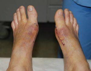 Швы после удаления косточек на ногах