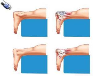 УВТ терапия для лечения бурсита