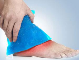 Прикладывание льда к поврежденной стопе