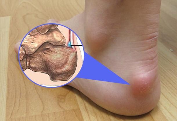 Ахиллобурсит причины симптомы лечение народными средствами в домашних условиях
