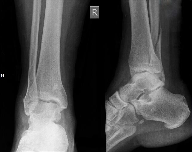 Перелом лодыжки со смещением и без: когда можно наступать на ногу