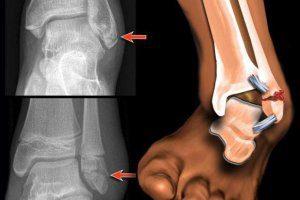 Перелом лодыжки со смещением и без: сколько ходить в гипсе