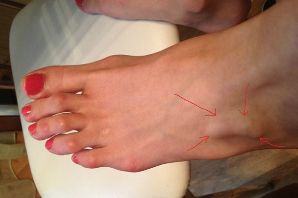 Как образуется неправильный угол из которого вырастает косточка на ноге