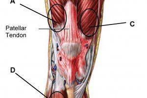 Воспаление из-за разрыва сухожилия