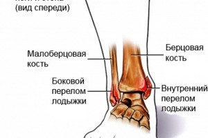 Боковой перелом лодыжки