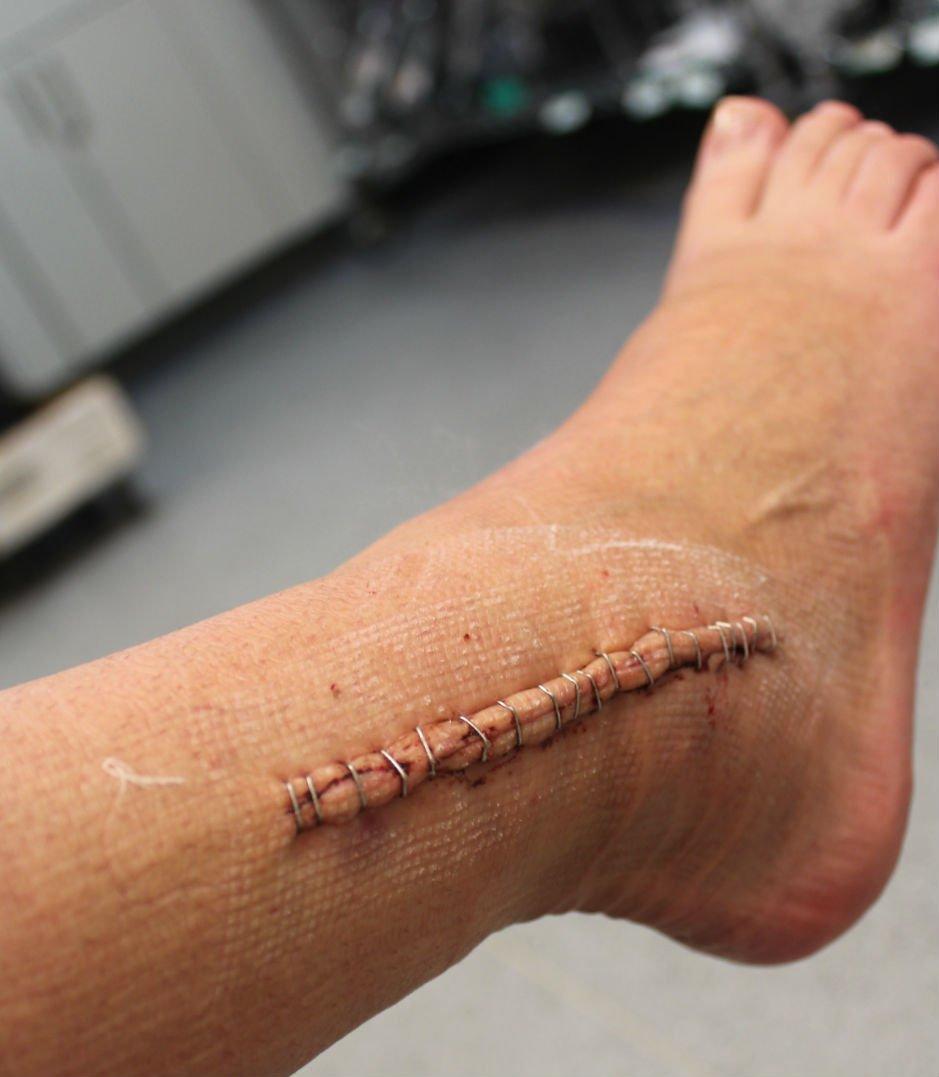 Перелом лодыжки со смещением – операция с фиксирующей пластиной