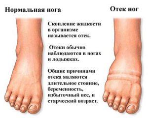 Почему возникает отек ног