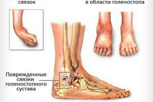 Повреждение связки голеностопного сустава