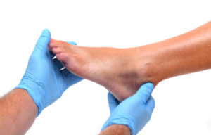 Синяк на ноге после ушиба