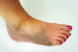 Отек ноги после снятия гипса