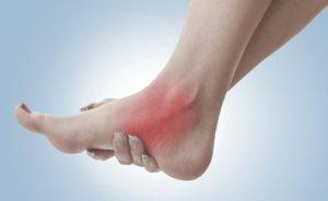 Сильная боль в области стопы