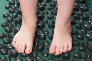 Врожденный дефект стопы у ребенка