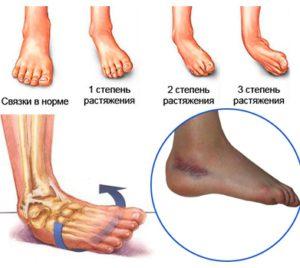 Симптомы и лечение (что делать при этой травме)