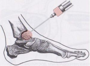 Пункция для удаления шишки на ноге