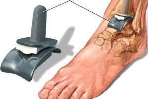 Замена голеностопного сустава