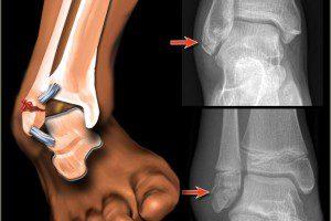 Внутренний перелом лодыжки