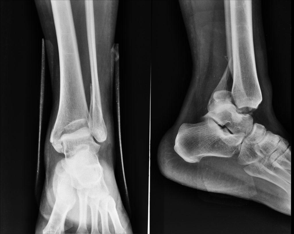 Что такое остеоэпифизеолиз латеральной и медиальной лодыжки без смещения
