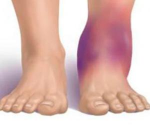 Отек ноги при растяжении